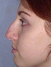 19-Year Old Receives Rhinoplasty - Before Photo, Side View