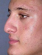 19 Year Old Male Patient Before Rhinoplasty Oblique