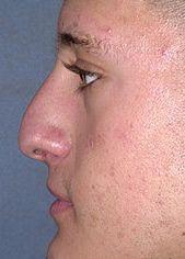 19 Year Old Male Patient Before Rhinoplasty Side
