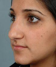 Oblique Before Rhinoplasty