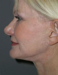 After Procedures Side View