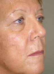 Oblique View Before Blepharoplasty