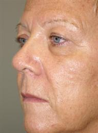 Before Blepharoplasty Oblique View