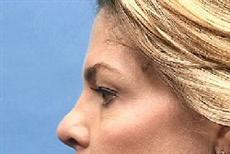 Side View Before Blepharoplasty