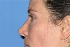 After Nose Reshaping Surgery Side View
