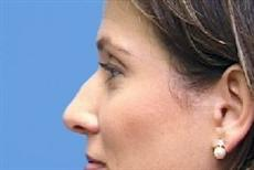Before Nose Reshaping Surgery Side View