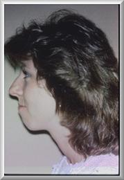 Side View Before Chin Implant and Rhinoplasty