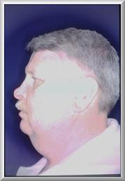Side View After Rhinophyma Reduction