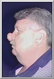 Side View Before Rhinophyma Reduction