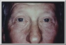 Front View After Eyelid Surgery
