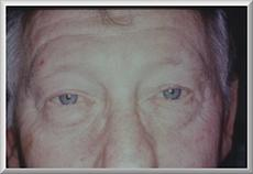 Front View Before Eyelid Surgery
