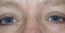 eyelid surgery after procedure