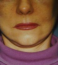 facelift after procedure