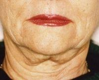 facelift before procedure