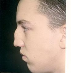Rhinoplasty side before procedure
