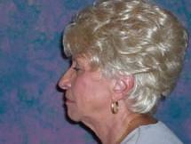 Side View Before Forehead Lift and Facelift