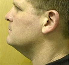 Side view before neck-lift