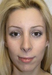 Front after Rhinoplasty