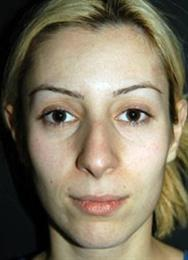 Front before rhinoplasty