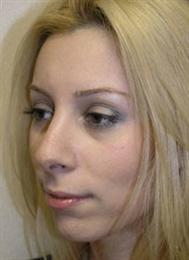 Oblique after Rhinoplasty