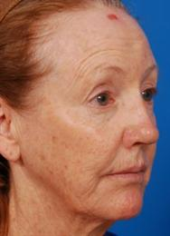 Oblique Before Necklift Laserpeel