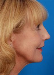 Side after Necklift Laserpeel