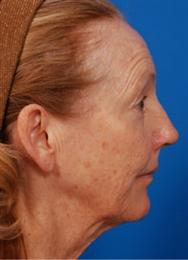 Side Before Necklift Laserpeel