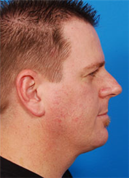 Side after Necklift