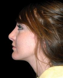 After Nose Reshaping Side View