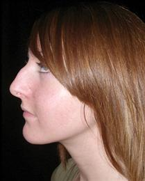 Before Nose Reshaping Side View