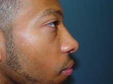 Side After Rhinoplasty