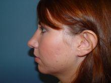 Side Left After Rhinoplasty