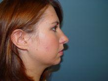 Side Right After Rhinoplasty