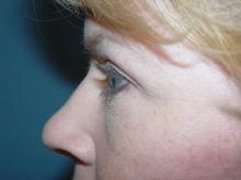Side Left After Eyelid Surgery