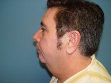 SIde Before Chin Augmentation
