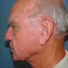 Side Left After Neck Lift