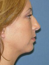 Side Before Nose Surgery