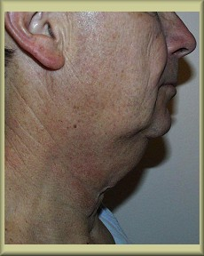 Side View Before Neck Lift