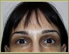 Front View After Brow Lift