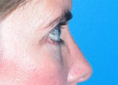 Side View After Blepharoplasty