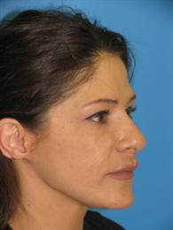 Oblique View After Fillers and Chin Reshaping