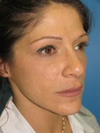 Oblique View Before Fillers and Chin Reshaping