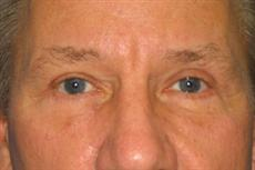 Front View After Blepharoplasty