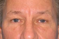 Front View Before Blepharoplasty