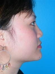 Side View After Rhinoplasty/Liposuction