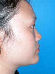 Side View Before Rhinoplasty/Liposuction