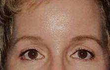 Front View After Forehead Lift