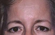 Front View Before Forehead Lift