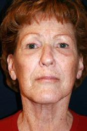 Front View After Facelift