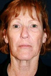 Front View Before Facelift